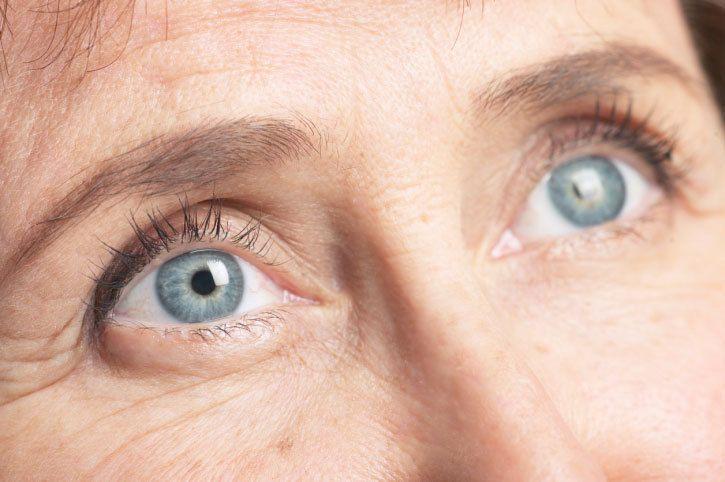 cataracte personne âgée