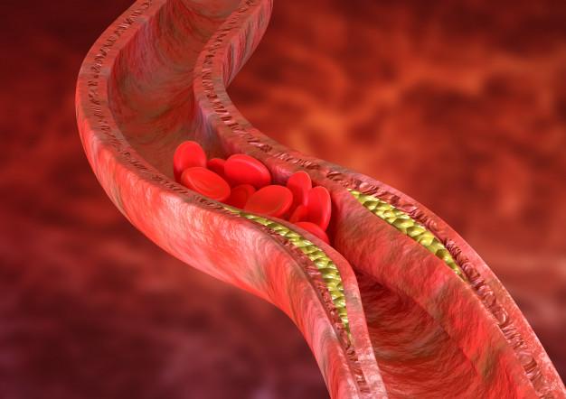 Athérosclérose, accumulation de plaques de cholestérol dans les parois des artères