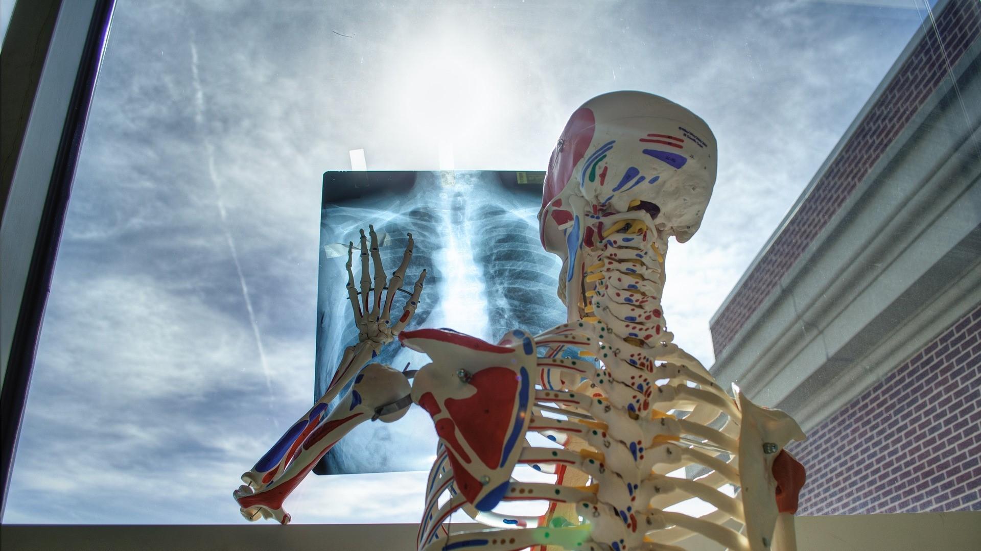 traitement de l'ostéoporose